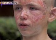Todos zombavam dele por causa de sua cicatriz - Conheça a emocionante história deste menino (A Marca do Amor)