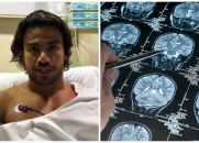 Visão Espírita - Há Males que Vêm para o Bem - (Cantor Mariano descobre tumor benigno do cérebro ao sofrer acidente em programa de televisão).